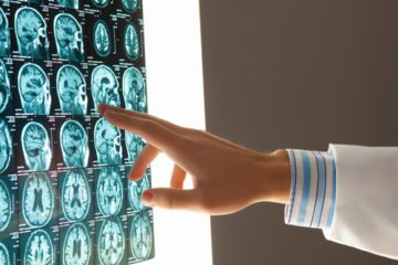 Got injury in an accident? Contact our Virginia traumatic brain injury lawyers today.